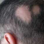 Everything You Should Know About Alopecia Areata